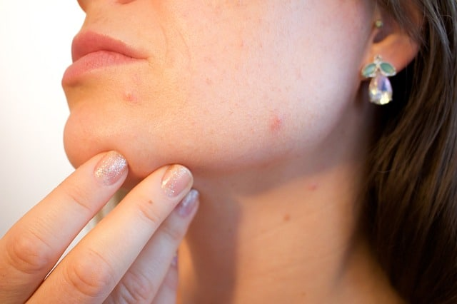 Benefits of Using Tea Tree Oil for Acne
